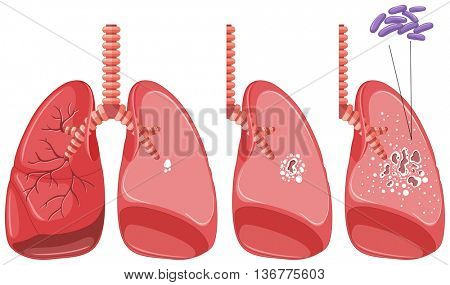 Tuberculosis in human lungs illustration