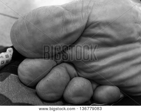my father's withered right foot sole in monochrome with selective focus