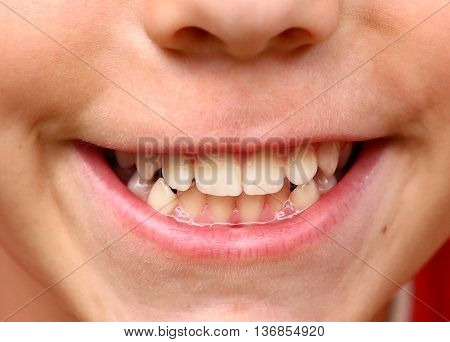 boy smile with strong white teeth close up photo