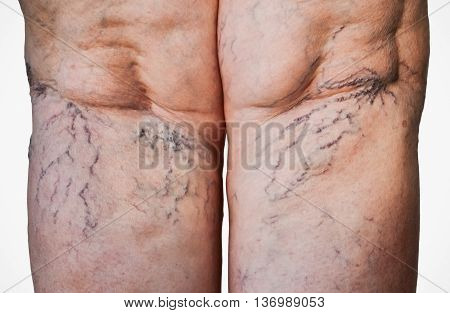 Closeup of swollen veins on the rear part of legs of an older woman