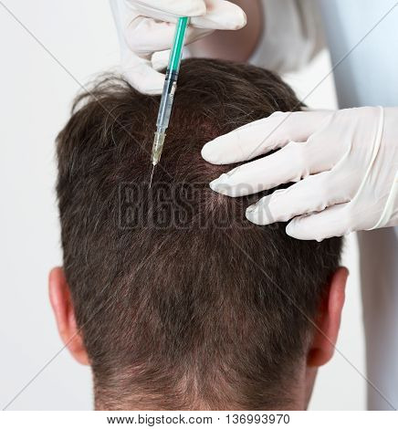 Handsome Man Is Getting Injection In Head. Concept Of Mesotherapy.