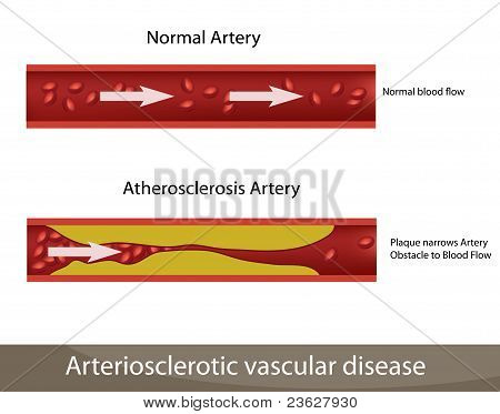 Artery and Atherosclerosis