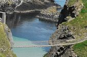 Overview Of Gorgeous Coast And The Renowned 20 Meter Long Carrick-a-rede Rope Walking Bridge Which C poster