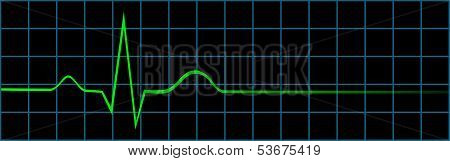 Electrocardiogram Showing Last Heart Beat