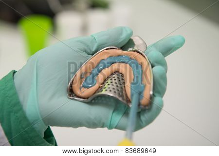 Closeup Shot Of Dental Impression With Implant