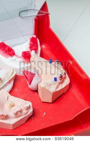 Production Dentures