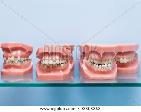 Line of jaw models on a shelf in dentist office