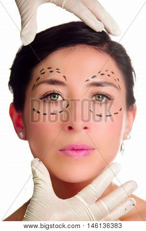 Headshot caucasian woman with dotted lines drawn around eyes looking into camera, doctors hands holding her head, preparing cosmetic surgery.