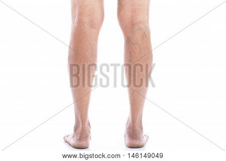 Varicose vein Isolated on white background with copy space