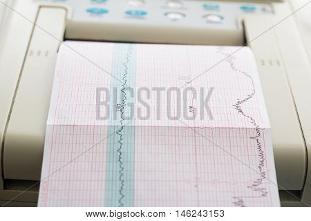 Printing of cardiogram report coming out from Electrocardiograph in labour ward. Fetal monitor