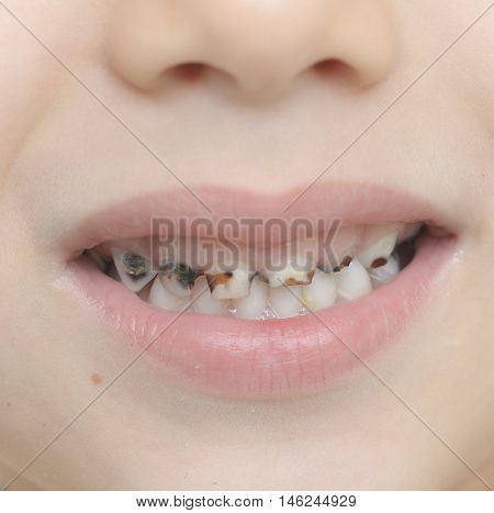 Baby Teeth With Caries