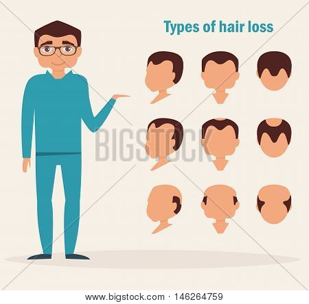 Types of hair loss. Full face, profile, top types. Vector illustration. Cartoon character Isolated
