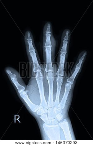 xray right hand and finger and human anatomy