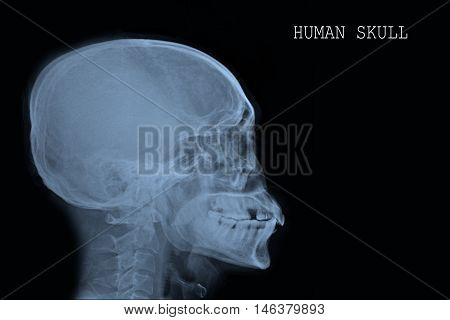 xray human skull lateral and cervical spine