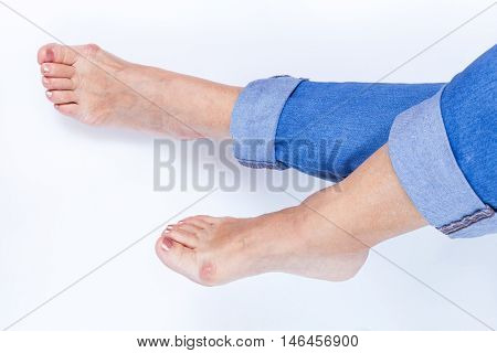 womans feet with painful bunions on white