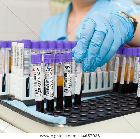 Test Tubes With Blood