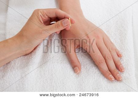 Detail of acupuncturist placing a needle in the Large Intestine 4 (LI4) point