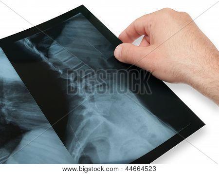 X- Ray