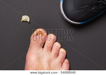 Consequences Of Wrong Sized Sport Shoe
