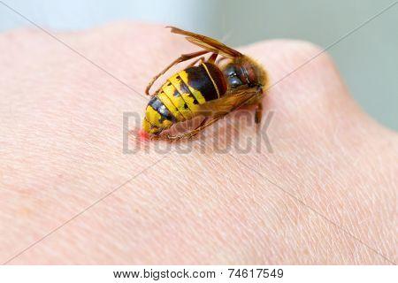 Hornet sting on hand