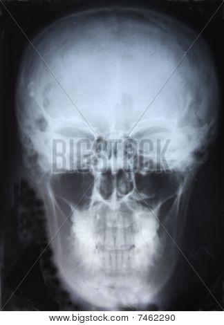Xray Of Skull