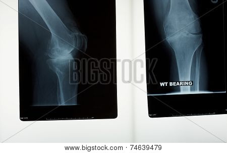 A X-ray Of A Knee Joint