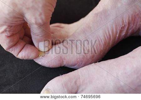 Man with dry skin and toenail fungus