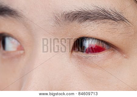 Eye Injury Or Infected For Healthy Concept, Macro Closeup