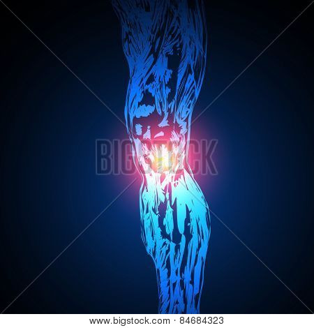 vector Painful Knee, easy all editable