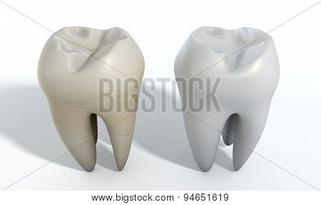 Dirty Clean Tooth Comparison