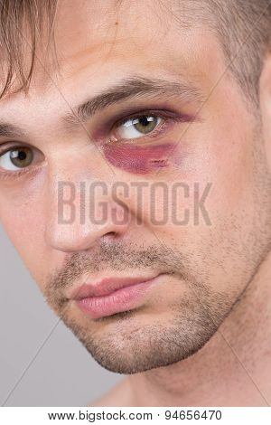 Man with an injured eye. Closeup.