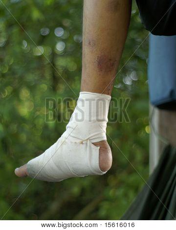 Bandaged foot sitting on hummock outdoors