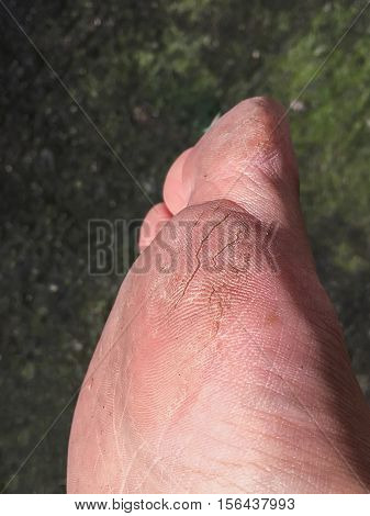 Dry skin, cracked skin, dry heel, dry foot. Close-up of dry skin isolated.
