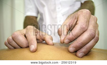 chinese medicine treatment - close up of hands doing acupuncture