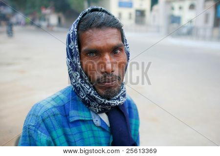 DELHI - JANUARY 18: Rickshaw driver with cataract in one eye on January 18, 2008 in Delhi, India. It's estimated that 20 million people were blind due to cataract in India.
