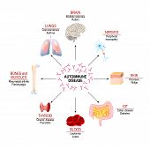 Tissues Of The Human Body Affected By Autoimmune Attack. Vector Diagram For Your Design, Educational poster