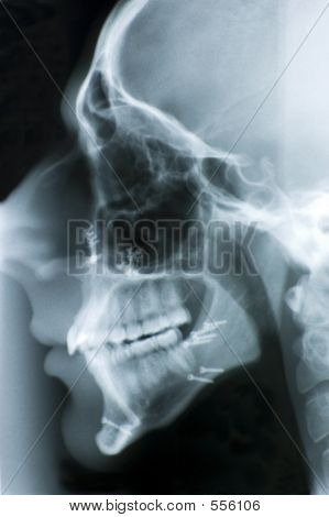 Head X-ray With Screws I