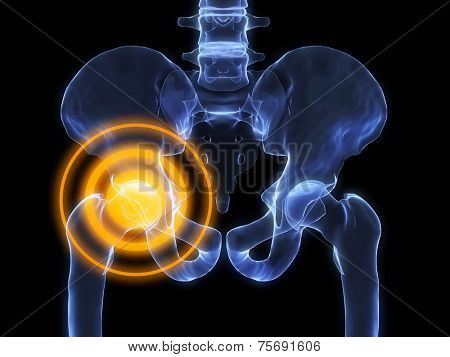x-ray - hip inflammation