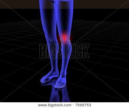 Radiografia Man Rodilla