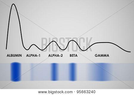 Blood serum protein electrophoresis electrophoretogram