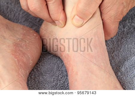 Checking athletes foot symptoms of dry skin