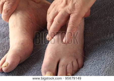Older man with athletes foot and toenail fungus