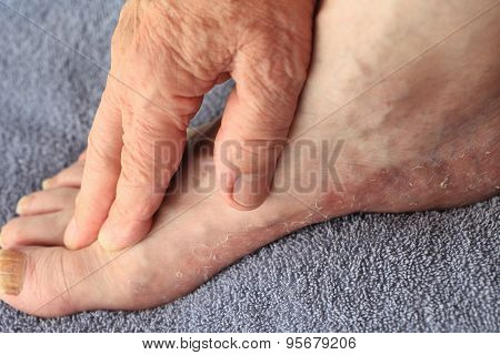 Man has dry, flaking skin on foot