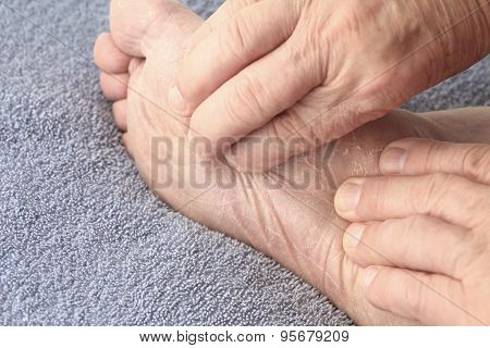 Man checking dry skin on foot