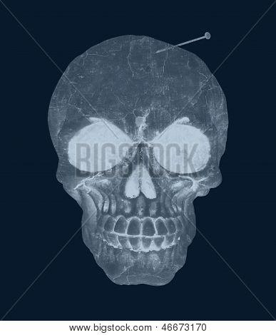 Human Skull Hurt