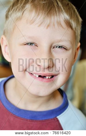 Little Boy Lost Milk Tooth