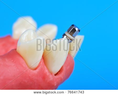 Dental Titanium Implant