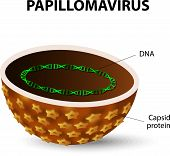 image of microorganisms  - HPV is the cause of cervical cancer in women - JPG