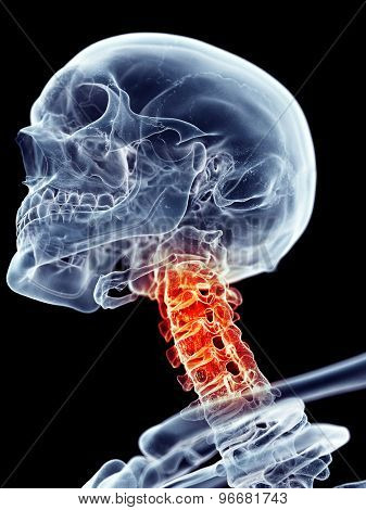 medically accurate illustration - painful neck