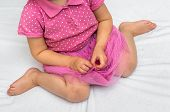 Child Sitting In Bad Position, Which Is Called W-sitting. W-sitting Can Cause To Hip Dislocation. poster